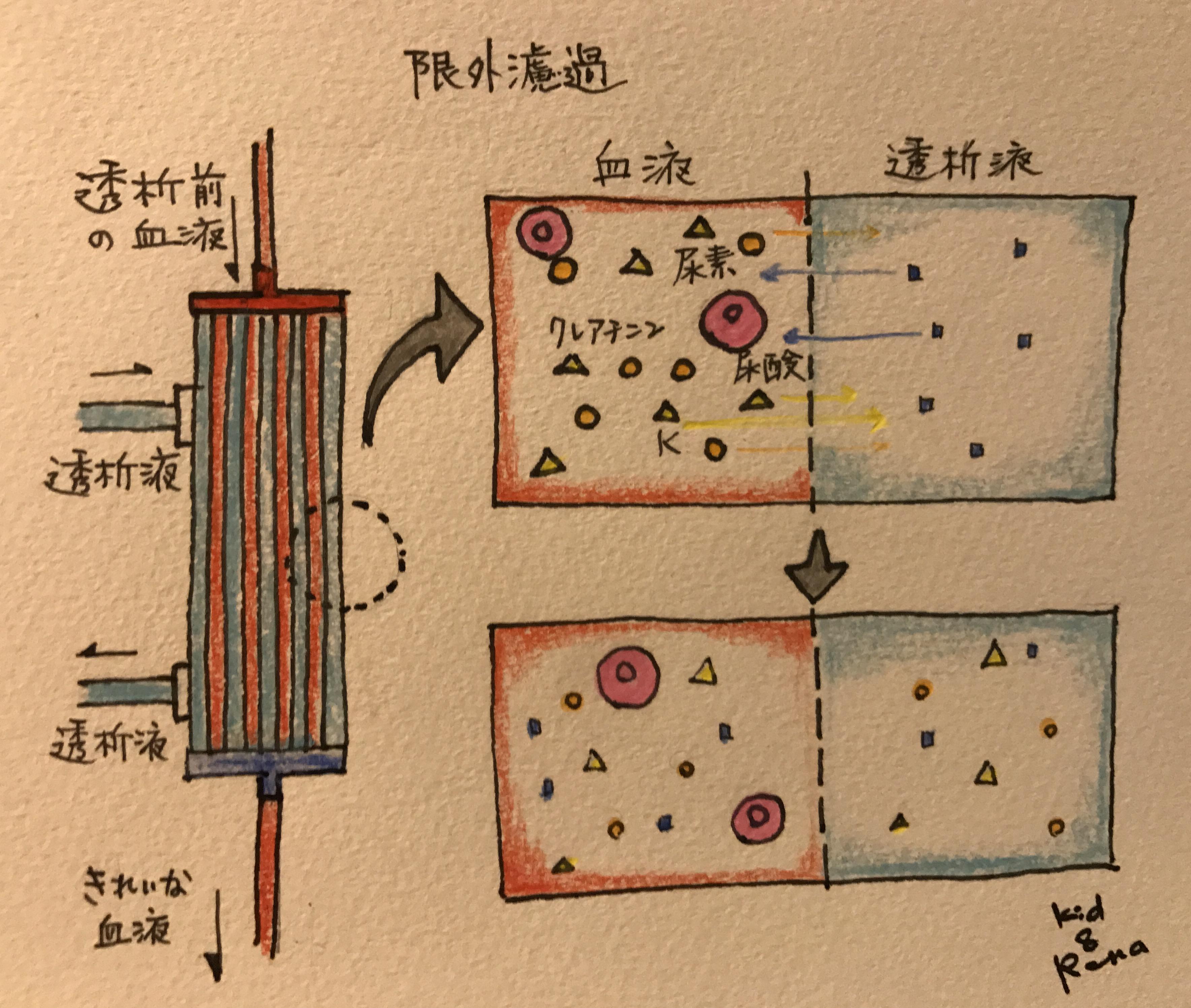 血液透析の原理